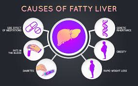 6 tips to reduce fatty liver disease