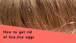 lice eggs removal home remes kri