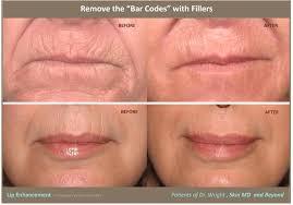 lip lines borders cosmetic skin care