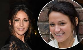 Michelle Keegan responds to surgery ...