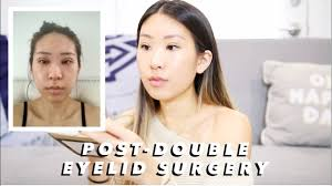 makeup after double eyelid surgery