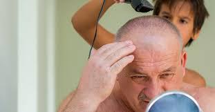 cradle cap in s treatment causes