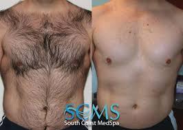 risk involved in laser hair removal