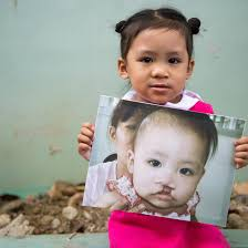 3D facial mapping helps Smile Train treat children with cleft lips |  Scotland | The Times