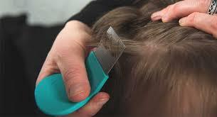 7 mon lice symptoms do you have lice