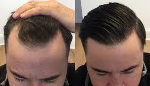 hair transplant international hair