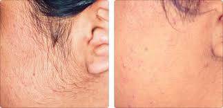laser hair reduction waron