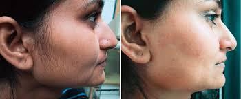 laser hair removal for black or dark