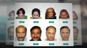 hair transplant india dr manoj khanna