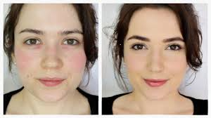 how to cover rosacea redness you