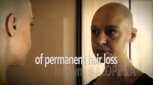 permanent hair loss after chemo