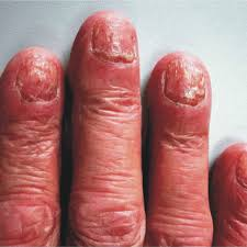 pdf histopathology of the nail unit
