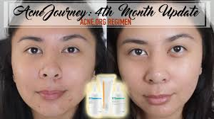 acne org aha makeupalley saubhaya makeup