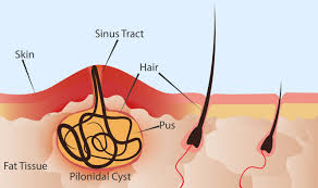 pilonaidal cyst removal toronto med spa