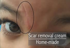 homemade scar surgical or traumatic