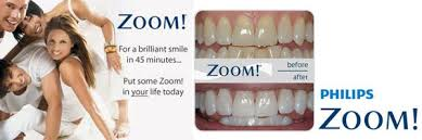 zoom white sd led hollywood smile