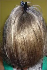 case report on pre hair graying