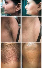 avissa skin laser hair removal ann