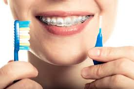 Image result for 6 must have things for cleaning braces