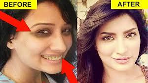 stani tv actress without makeup pics