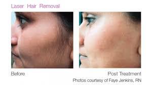 laser hair removal calgary merle
