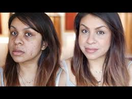 cover up acne scars without foundation
