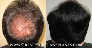hair transplants cost walts corner