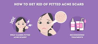 how to get rid of pitted acne scars at
