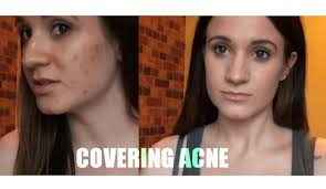 acne scars full coverage foundation