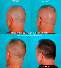 best neograft fue treatment in florida