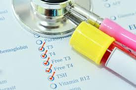 hypothyroidism symptoms and treatments