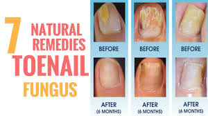clear nail plus the best treatment