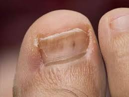 10 diseases your feet can reveal
