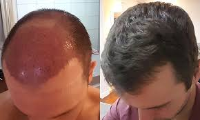 my fut hair transplant the first 5