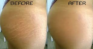 airbrush makeup to hide stretch marks