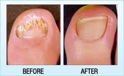 toenail fungus laser treatments