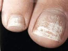 white chalky patches on toenails