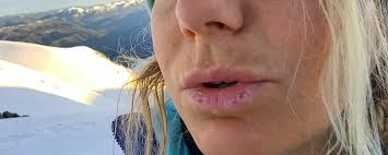 sunburned lips how to prevent and
