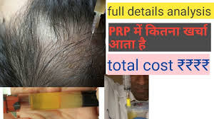 prp therapy for hair loss treatment