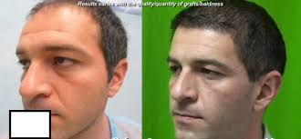 best fue hair restoration doctor in the