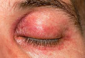 signs of a severe allergic reaction