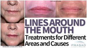 treatments for lines around the mouth