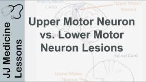lower motor neuron lesions umn vs lmn