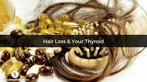 how to overe hashimoto s hair loss
