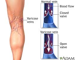 Mens Center - Penn State Hershey Medical Center - Varicose veins ...