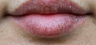 home remes to heal chapped lips