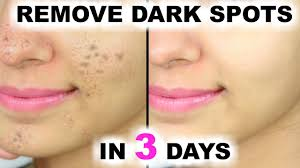 in 3 days remove dark spots black