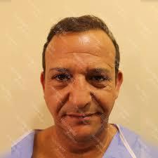fue ct hair transplant hairworld istanbul