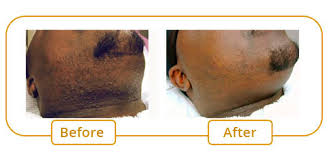 hair removal for pigmented skin