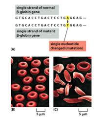 missense mutation sickle cell anemia لم